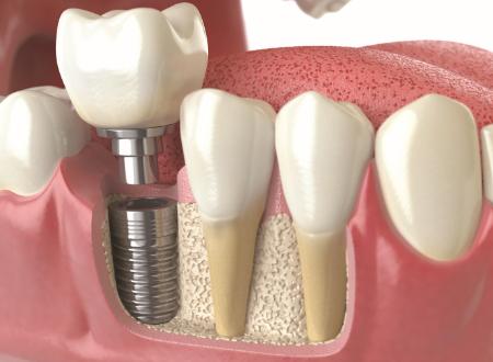 インプラント治療は、抜けた歯に代えて人工歯根を顎骨に埋め込み、結合した後に、人工歯を人工歯根にかぶせる。